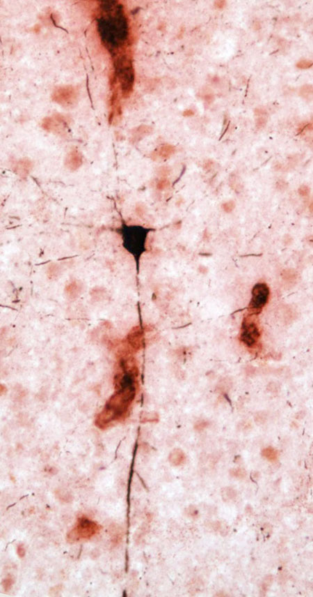 This image shows tau-positive neuron (black) in proximity to amyloid deposits within blood vessels (red) in an aged chimpanzee brain.