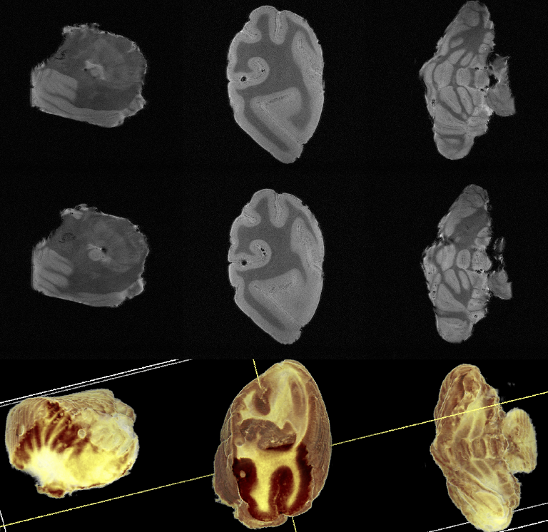 Single slice and reconstructed post-mortem primate tissue