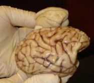 Comparing the brains of a baboon (foreground) compared to that of an owl monkey.